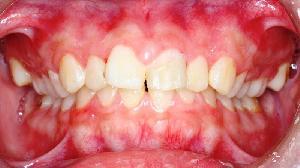 阮綜合醫院牙科部梁錦榮醫師提醒 孕婦須注意口腔問題